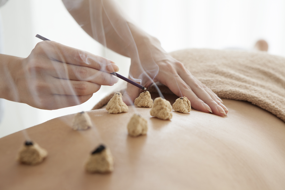 A Brief History of Japanese Acupuncture | AIMC